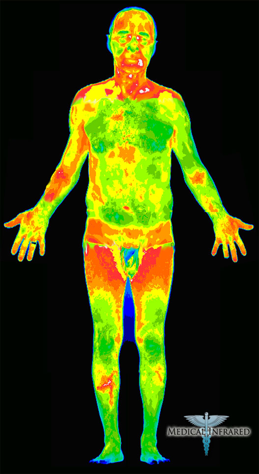 wireless heat map with Wireless Body Temperature Monitorlogger on Coverage in addition Verizon Triples Lte Capacity 4g War Against T 2D11703498 further Article1746 further At Coverage Map Problems Heat Map furthermore Risk Assessments Internalcontrolsnueske.